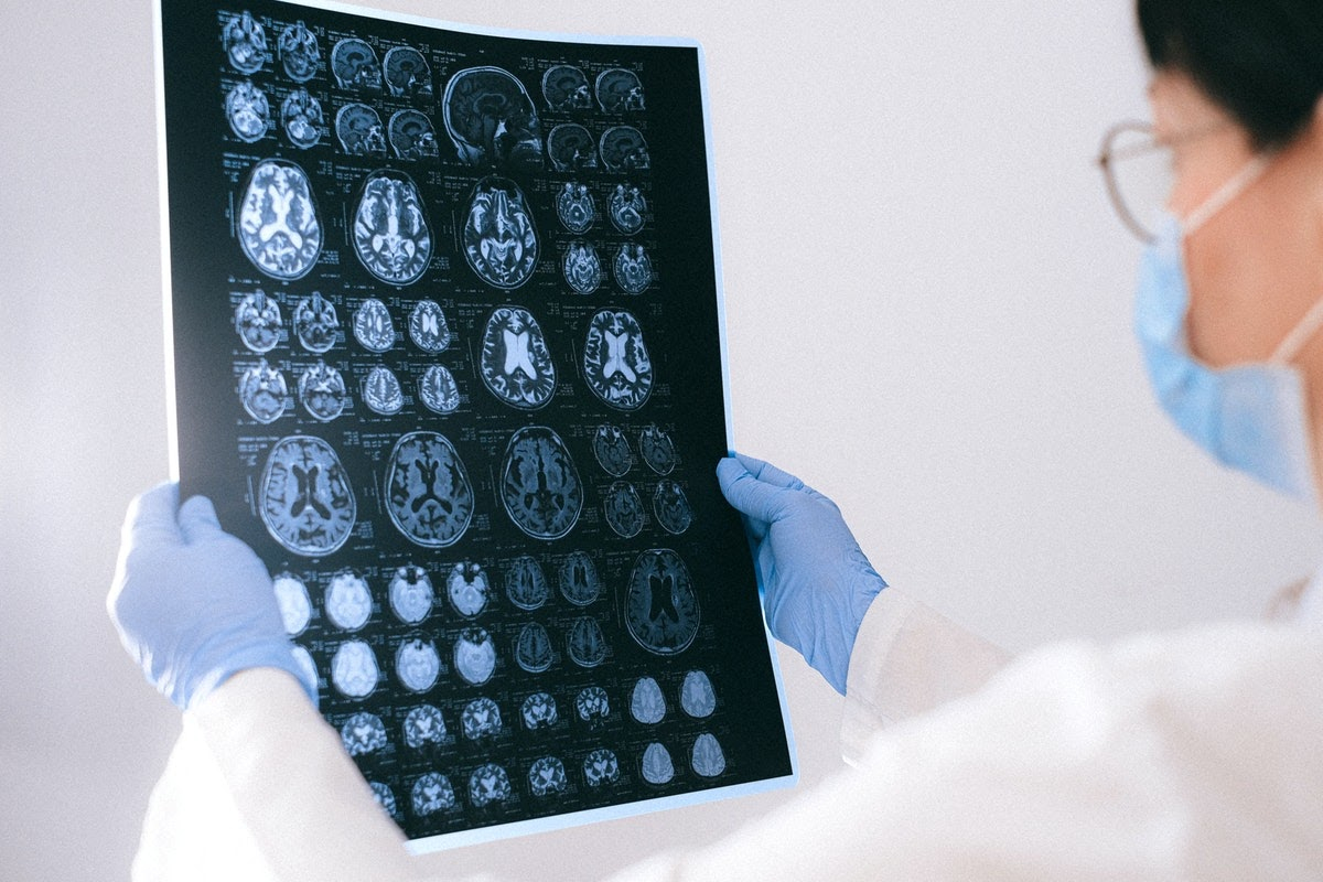 a doctor looking at brain scans