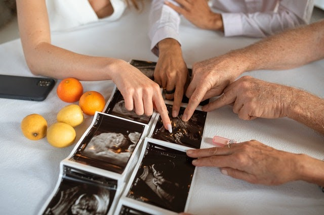 Four people sit around table and view ultrasound images