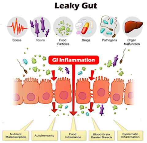 Image of leaky gut and gastrointestinal inflammation