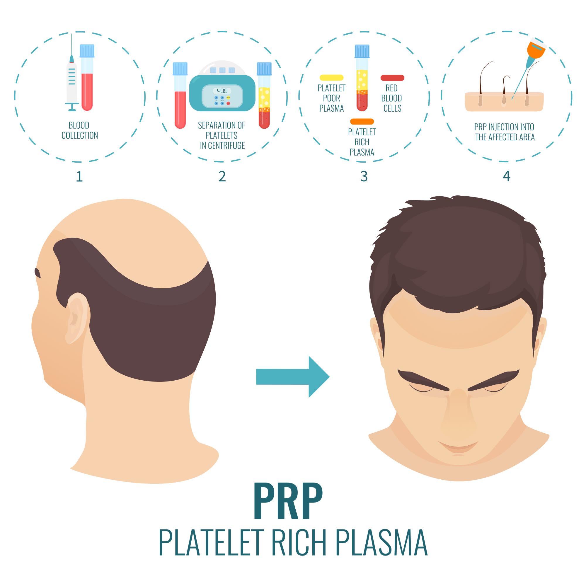 Platelet Rich Plasma (PRP) for Hair Loss