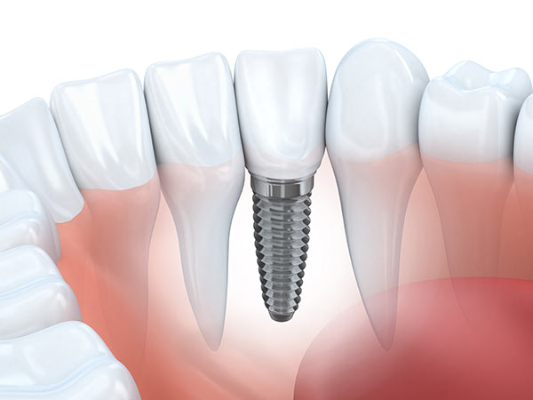 Photo of Tooth Dental Implant