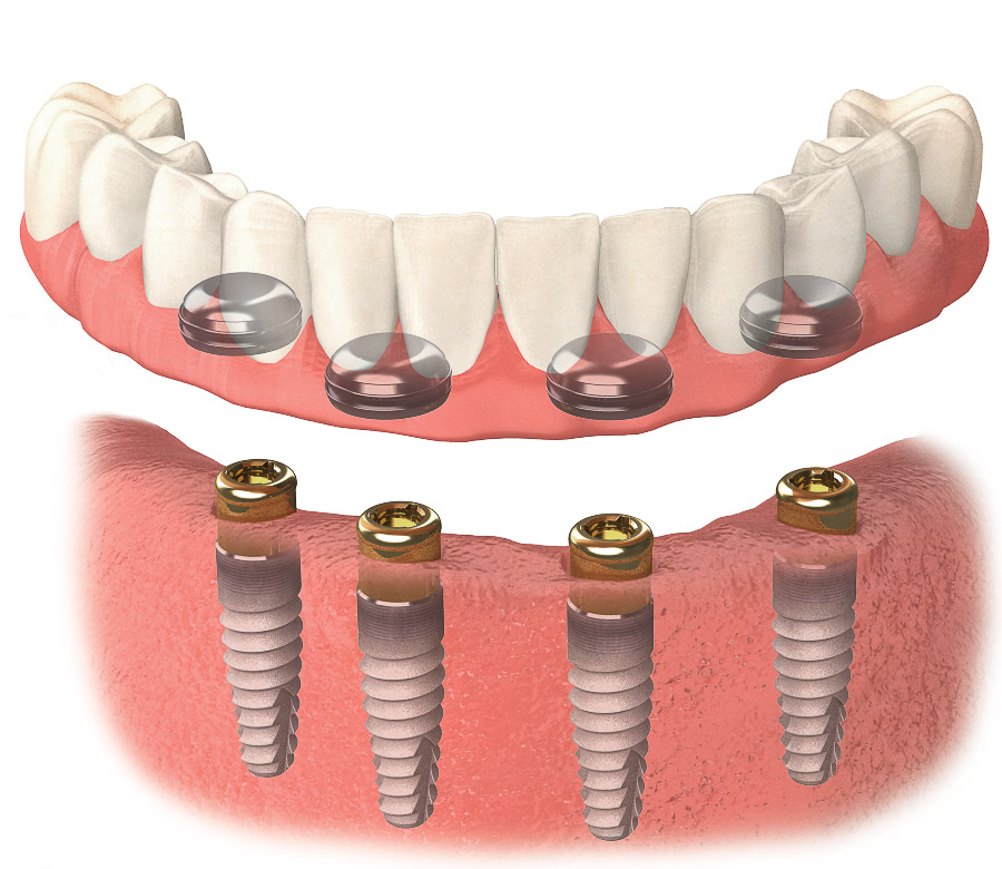 Photo of Dental implant rendering