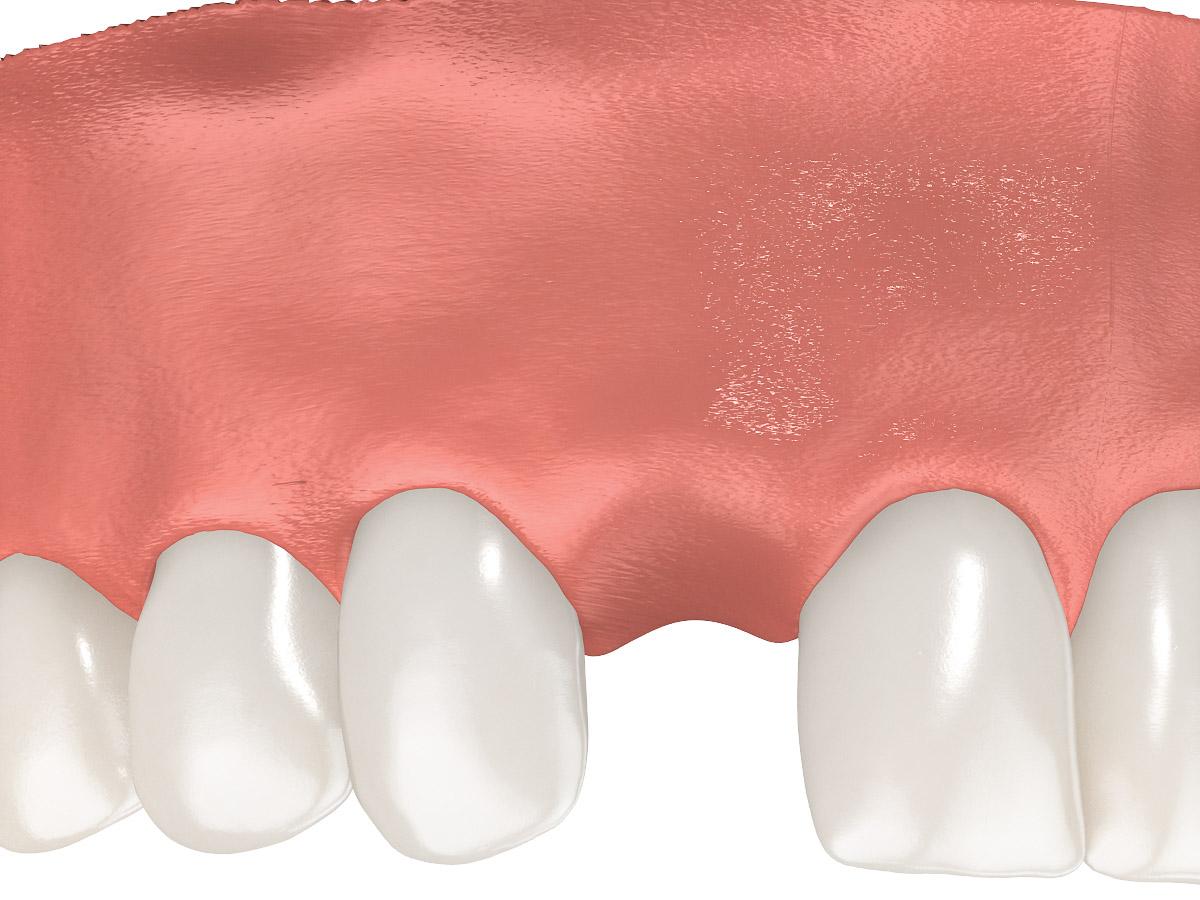 Photo of Dental implant rendering