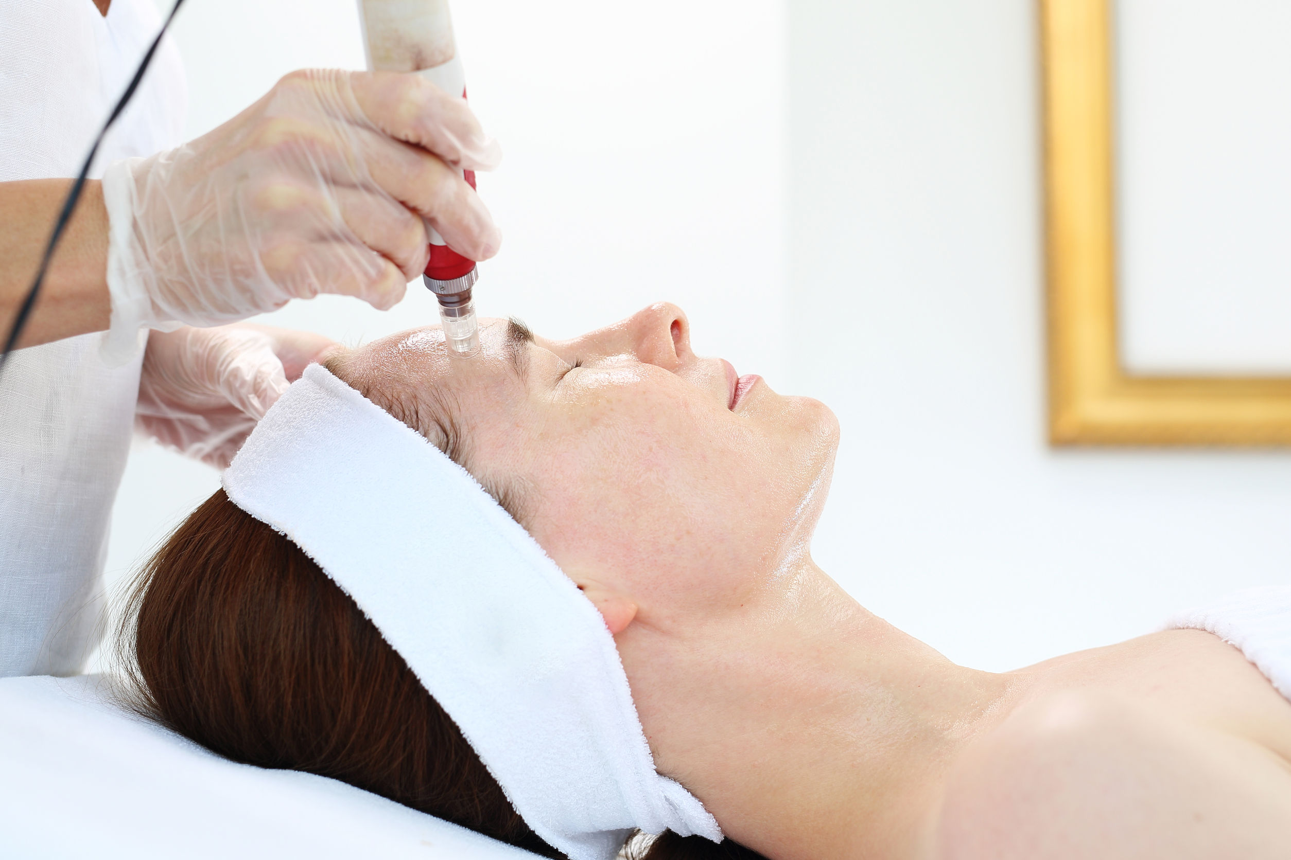 5 Things You Didn't Know About Microneedling with PRP
