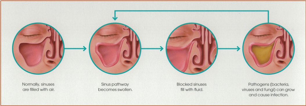 Treatment For Sinusitis At Riesberg Institute