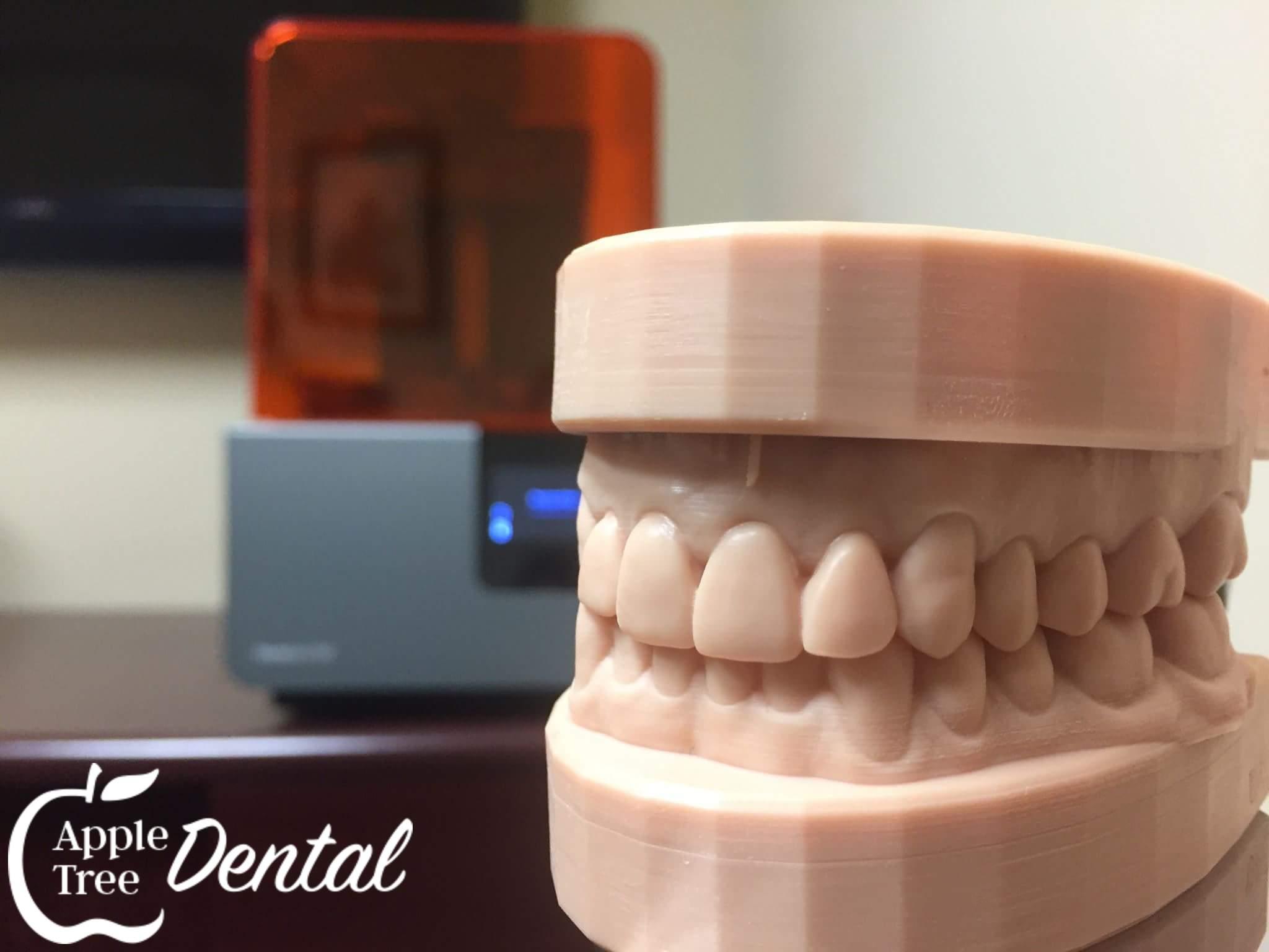 Teeth Impression Photo
