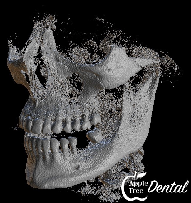 3D X-Ray of Face