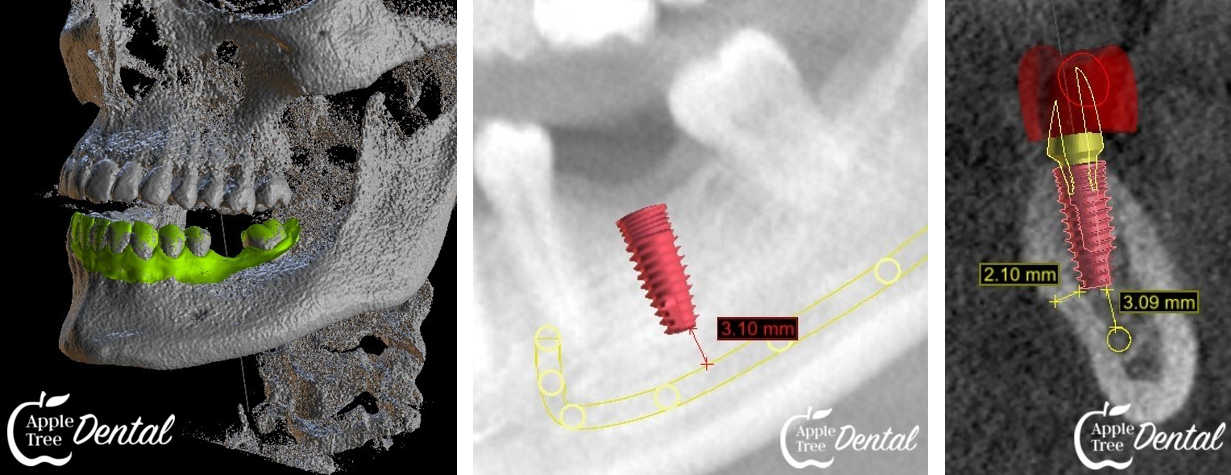 3D Images of Teeth and Closeups