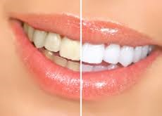 teeth whitening photo