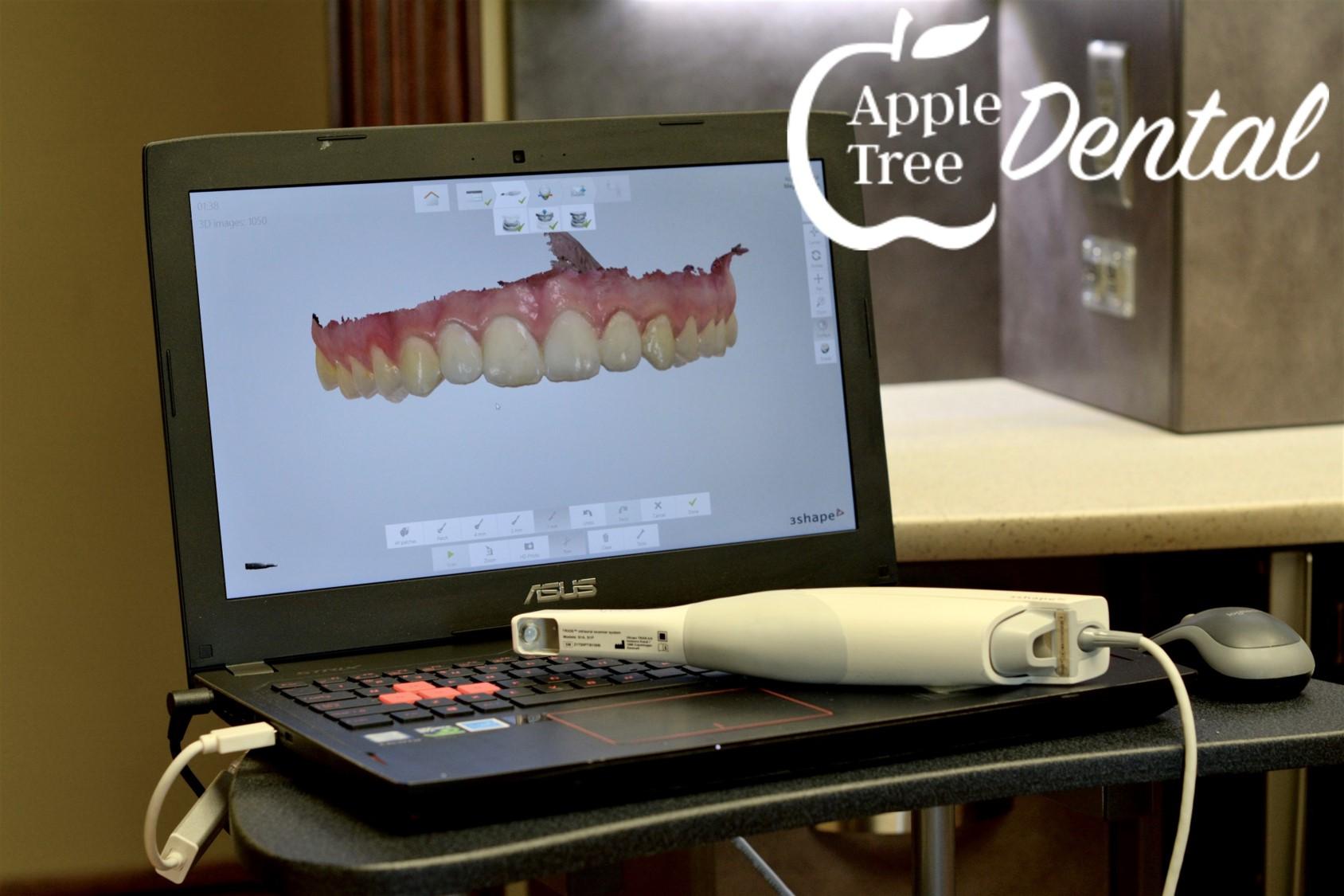 3d Rendering of Teeth