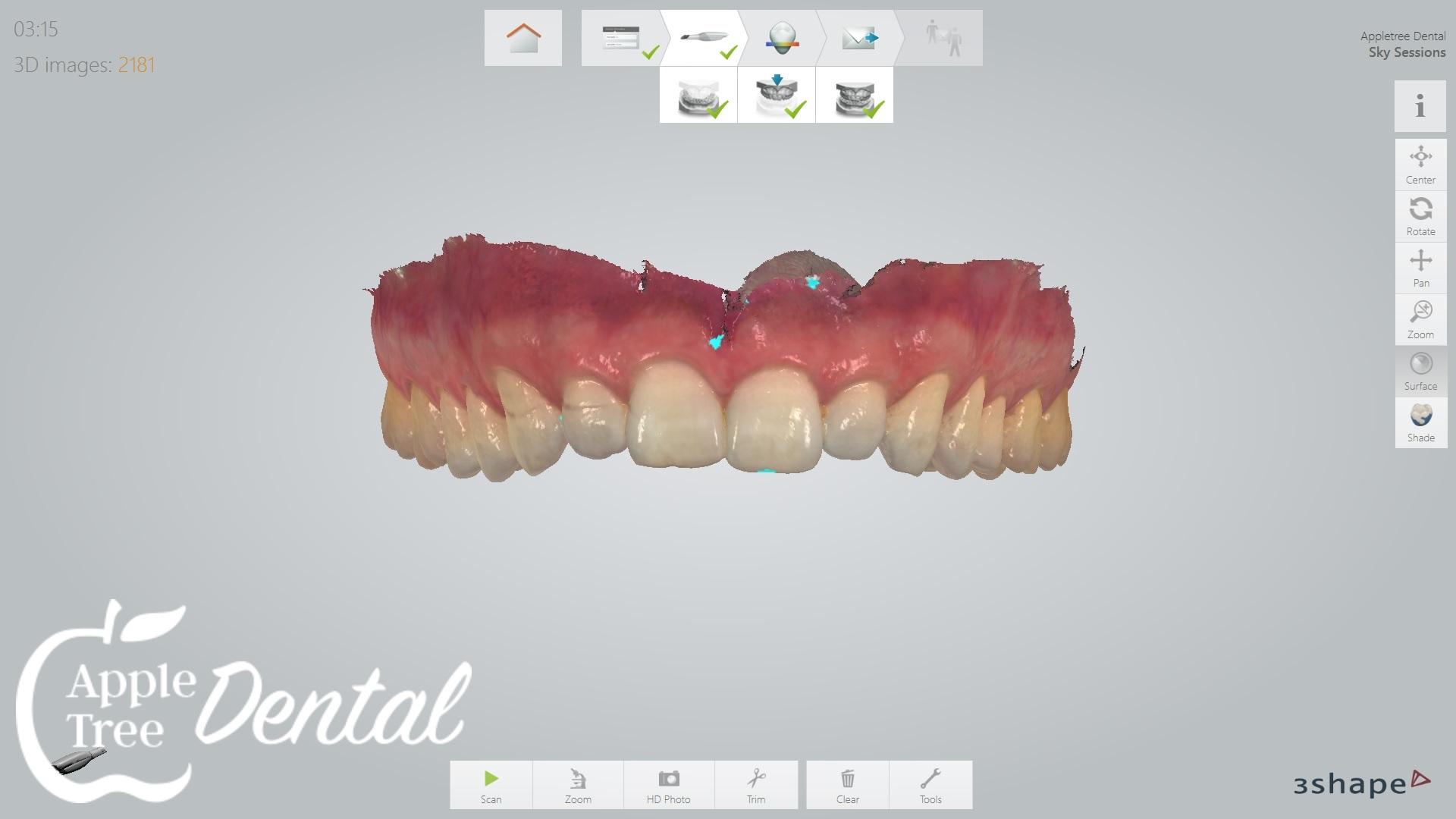 3D Scan of teeth
