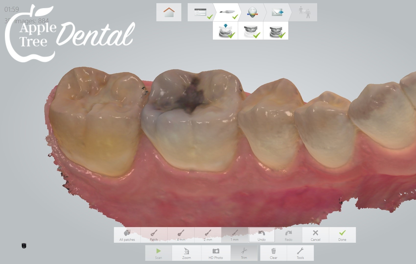 closeup 3d scan of teeth