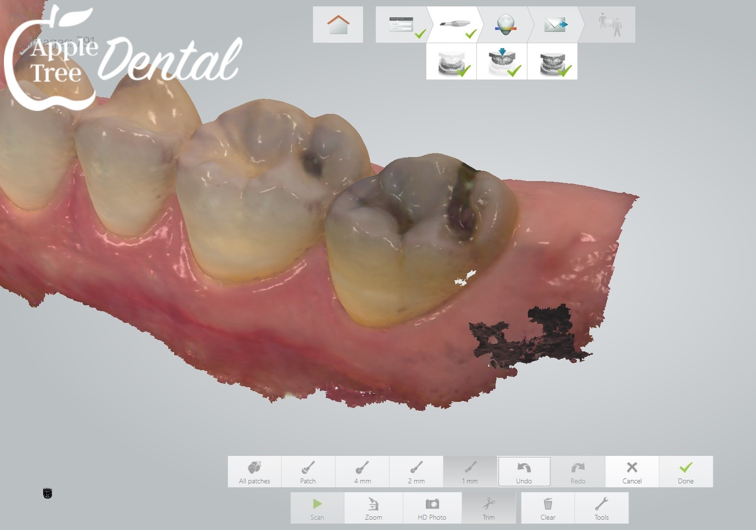 close up 3d scan of teeth