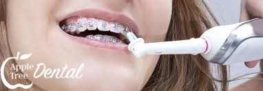 A women brushing her teeth and braces with an electric toothbrush.