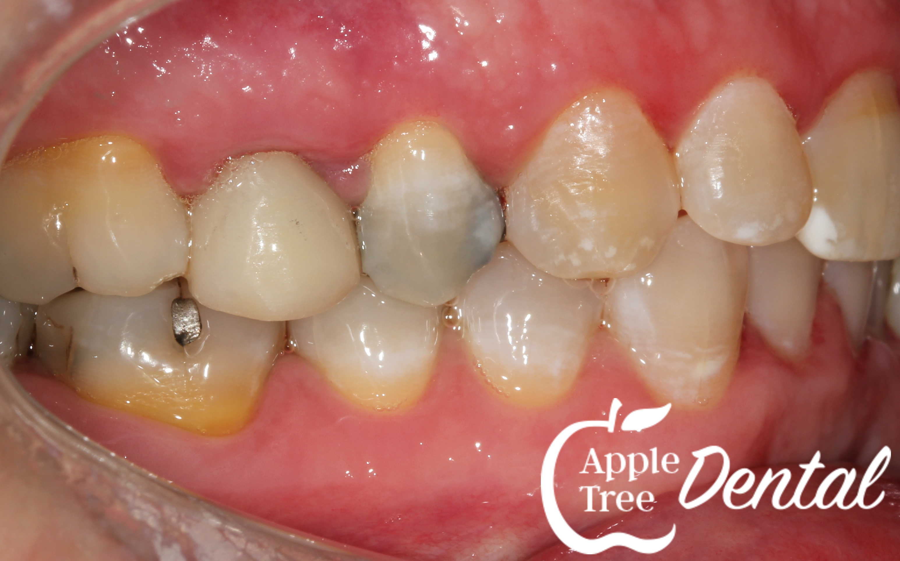 Darkened and unesthetic tooth due to silver fillings