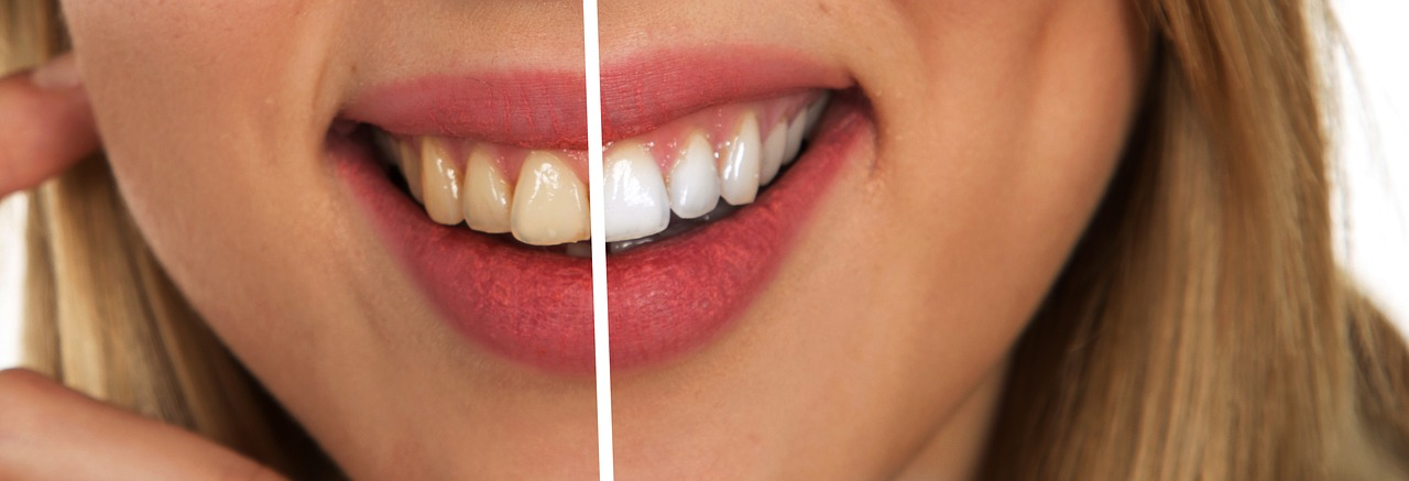 Teeth Whitening Rexburg