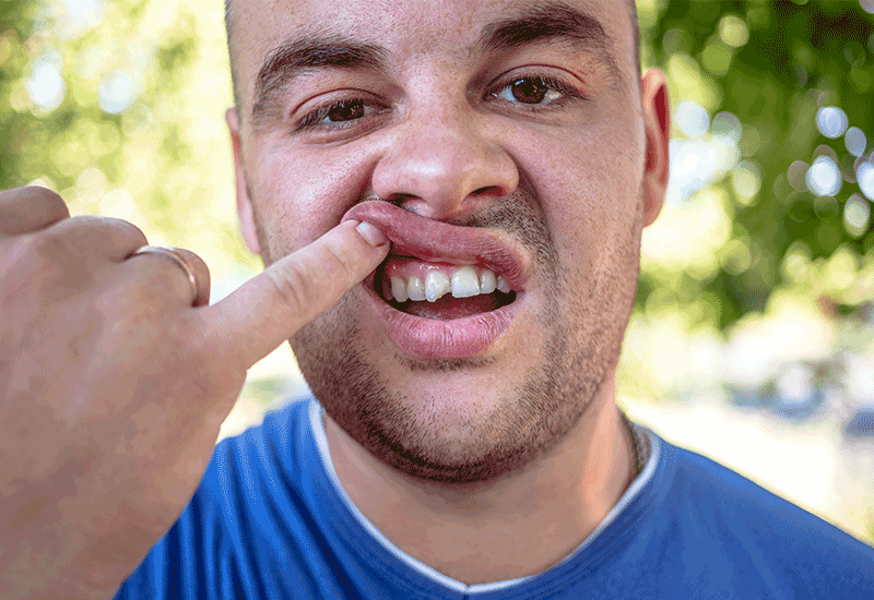 Man with Chipped Tooth