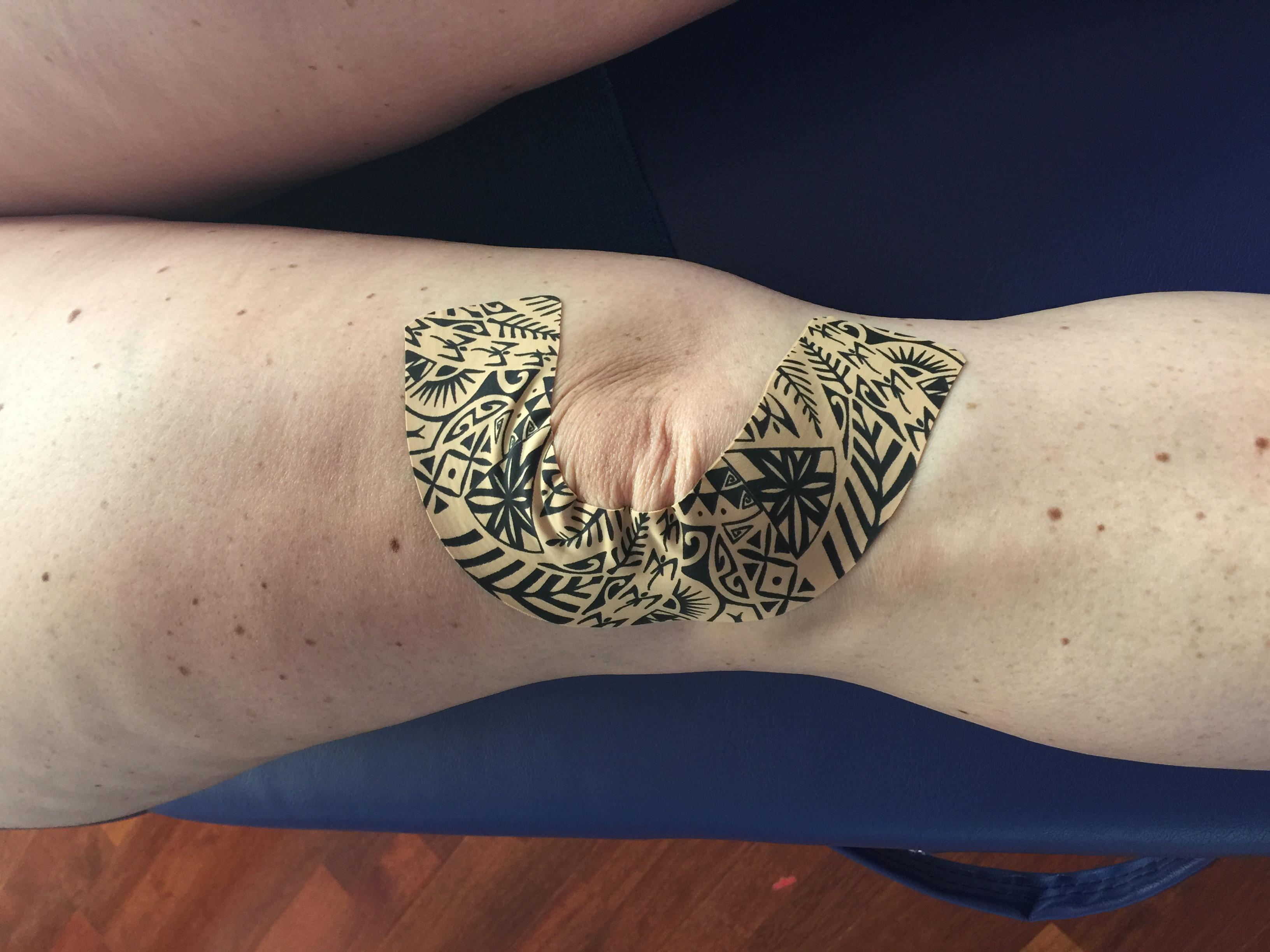 Dynamic Tape Das Biomechanische Tape Im Tattoo Style Aus Australien