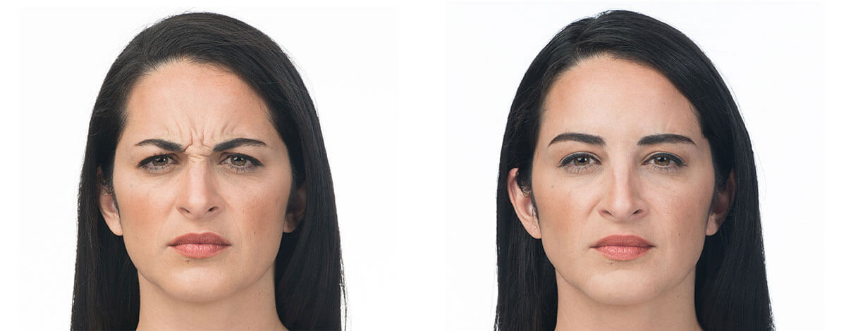 Botox before and after - Beauty and Wellness RX