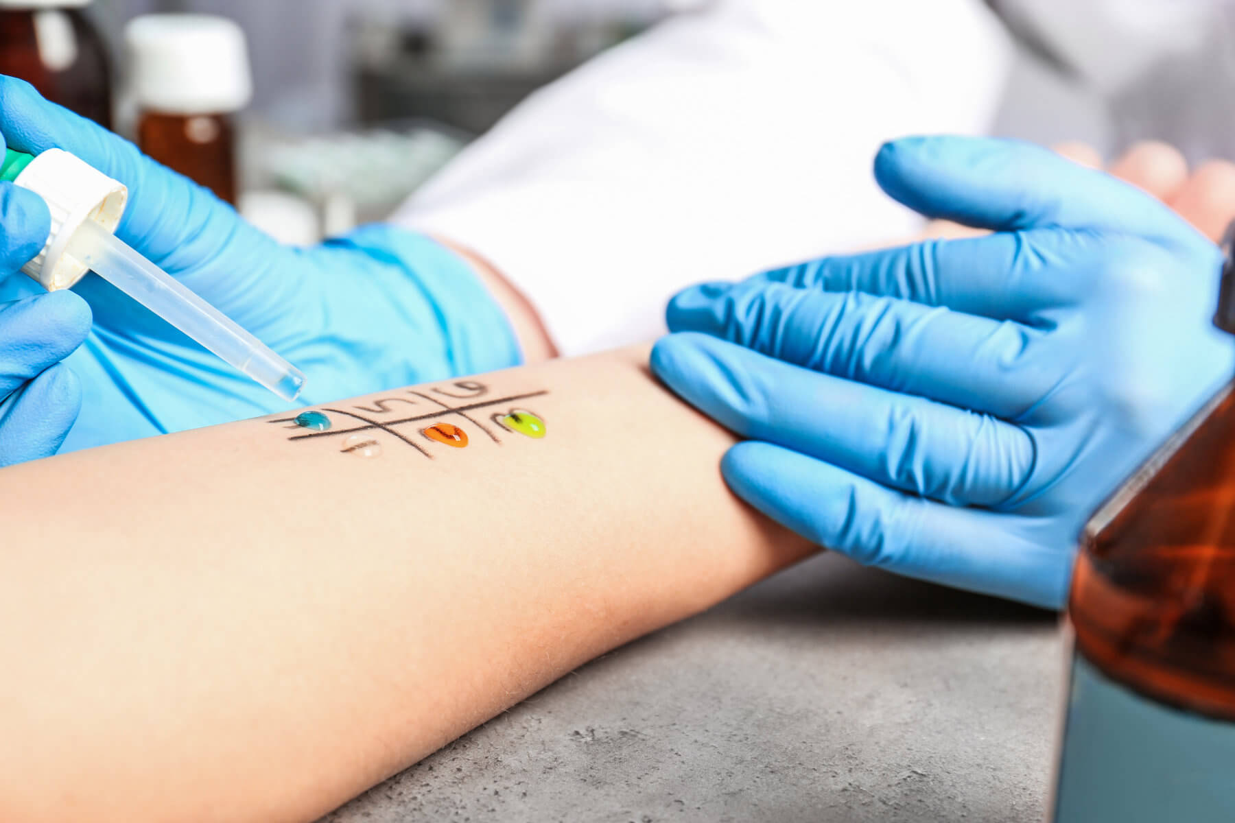Allergy Testing / Immunotherapy Jacksonville Florida