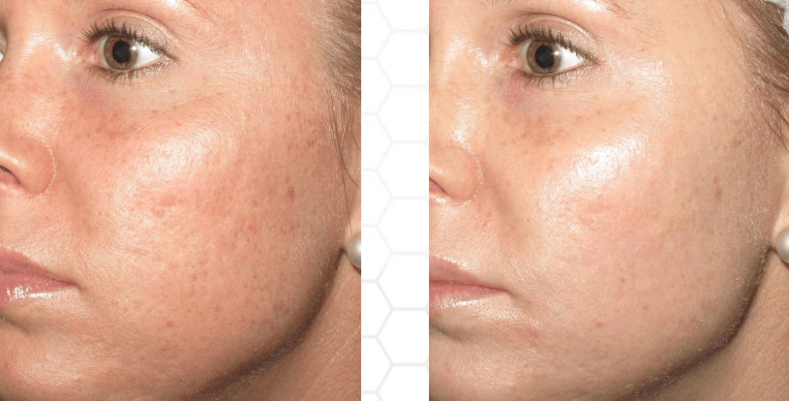 Microneedling Collagen