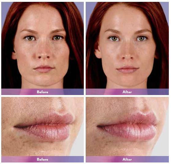 Juvaderm Face Before and After