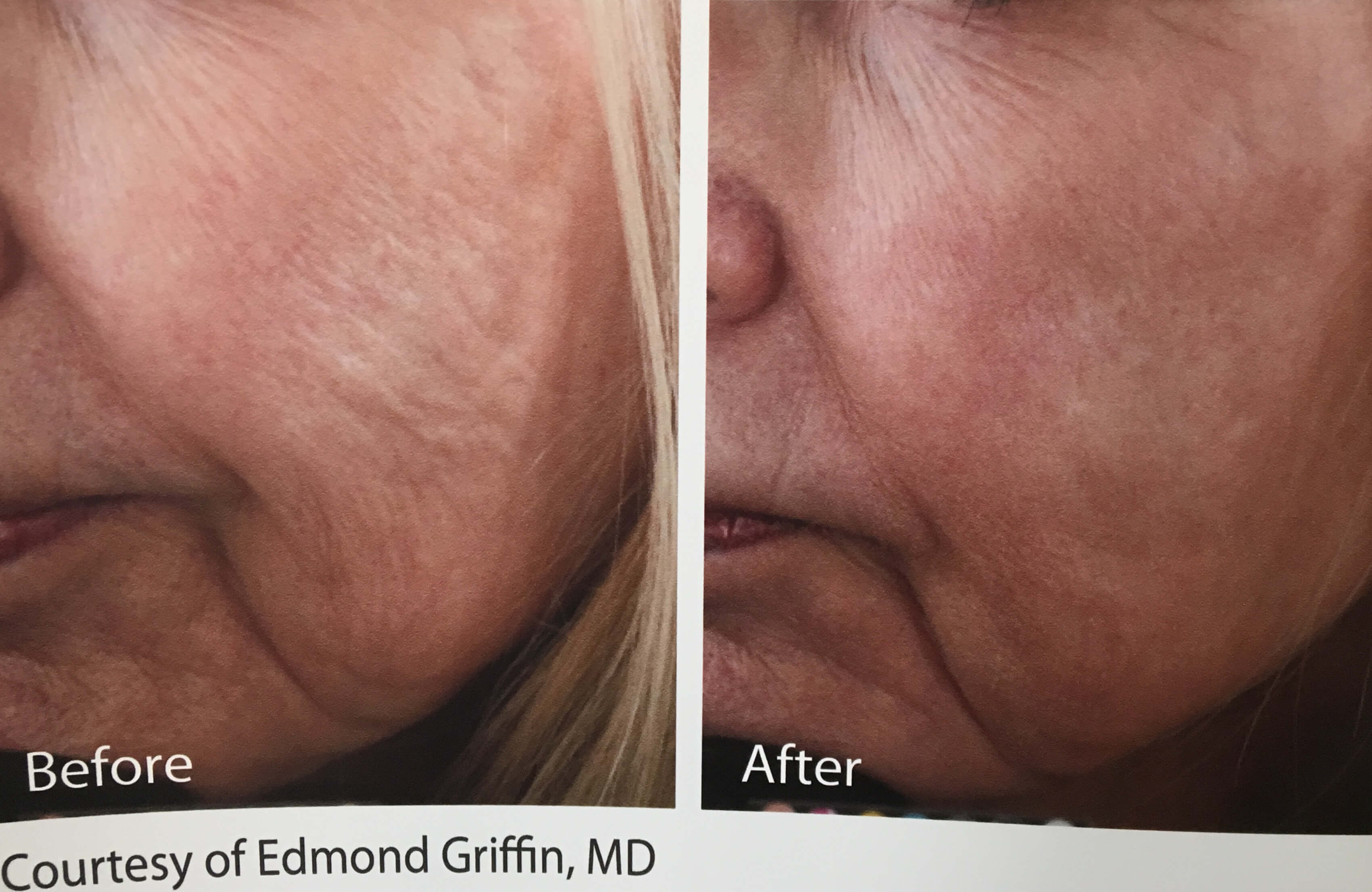 Photofacial & Skin Tightening Acne Melasma 1