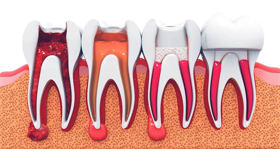 root canal treatment in calgary