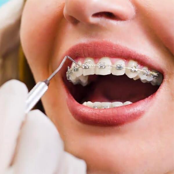 nw calgary orthodontics