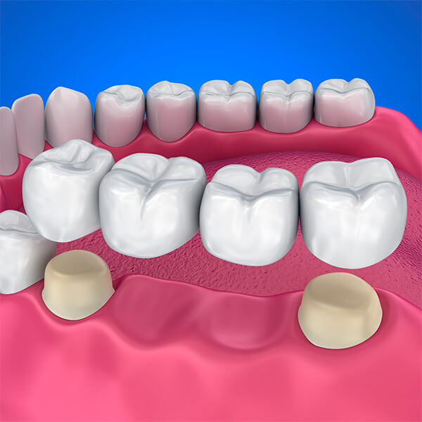 calgary dental bridges