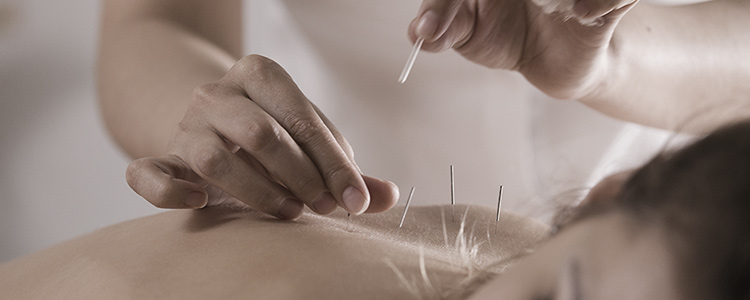 Patient receiving Acupuncture treatments in Downtown Silver Spring, Md, District of Columbia, and Virginia.