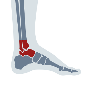 Foot pain Chiropractic adjustments restore normal movement and alignment to the joints of the foot and ankle. The foot pain treatment provides mobility with chiropractic, physical therapy, acupuncture at Ashton Rehabilitation Clinic in Silver Spring, MD