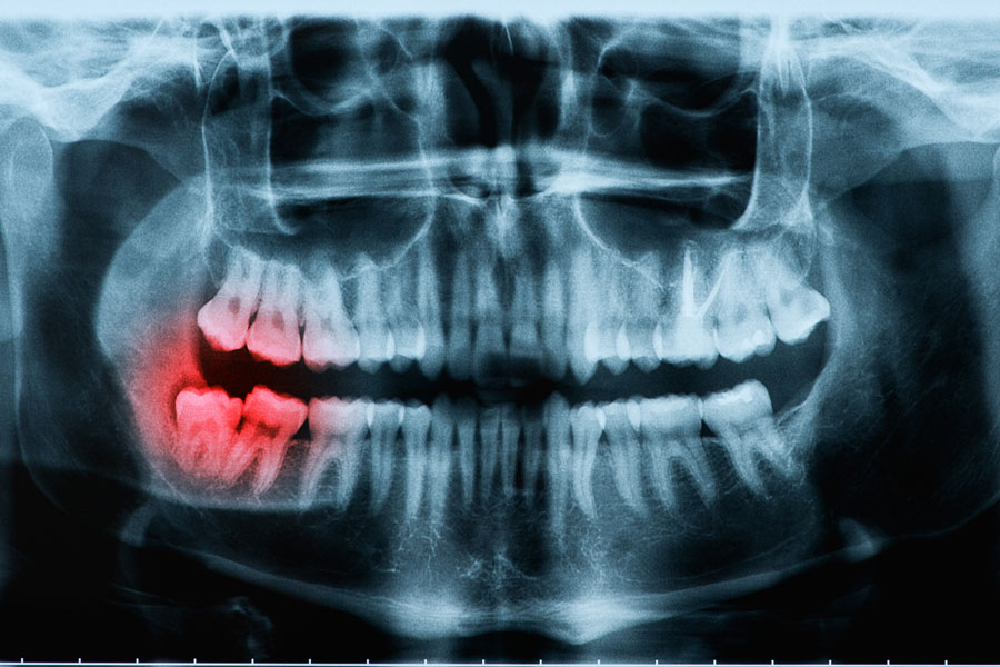 An X-ray indicating some sort of tooth condition