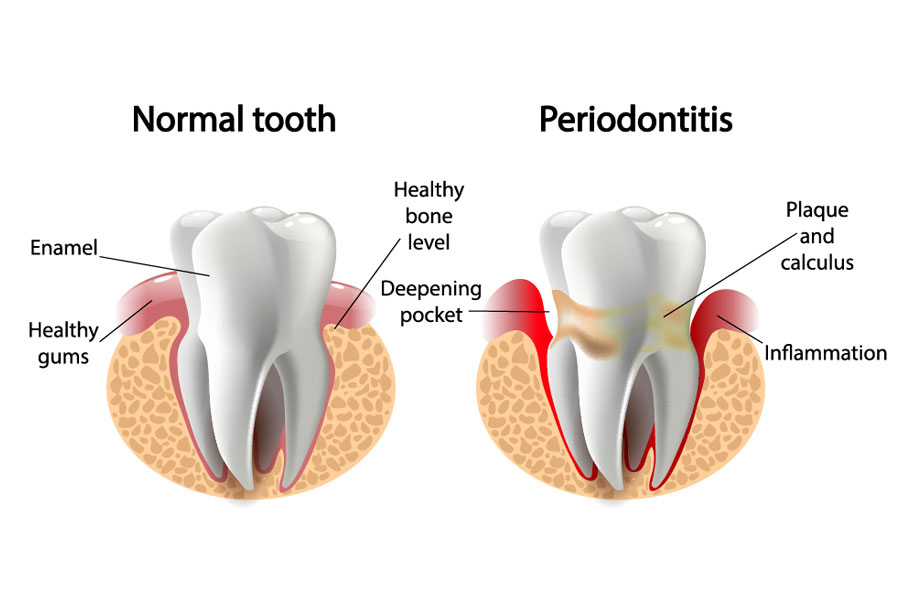 An illustration of two different teeth