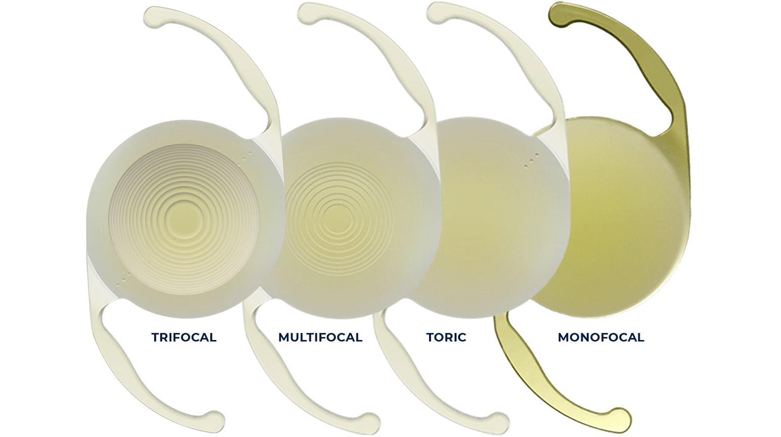 Choosing the Right Cataract Lens