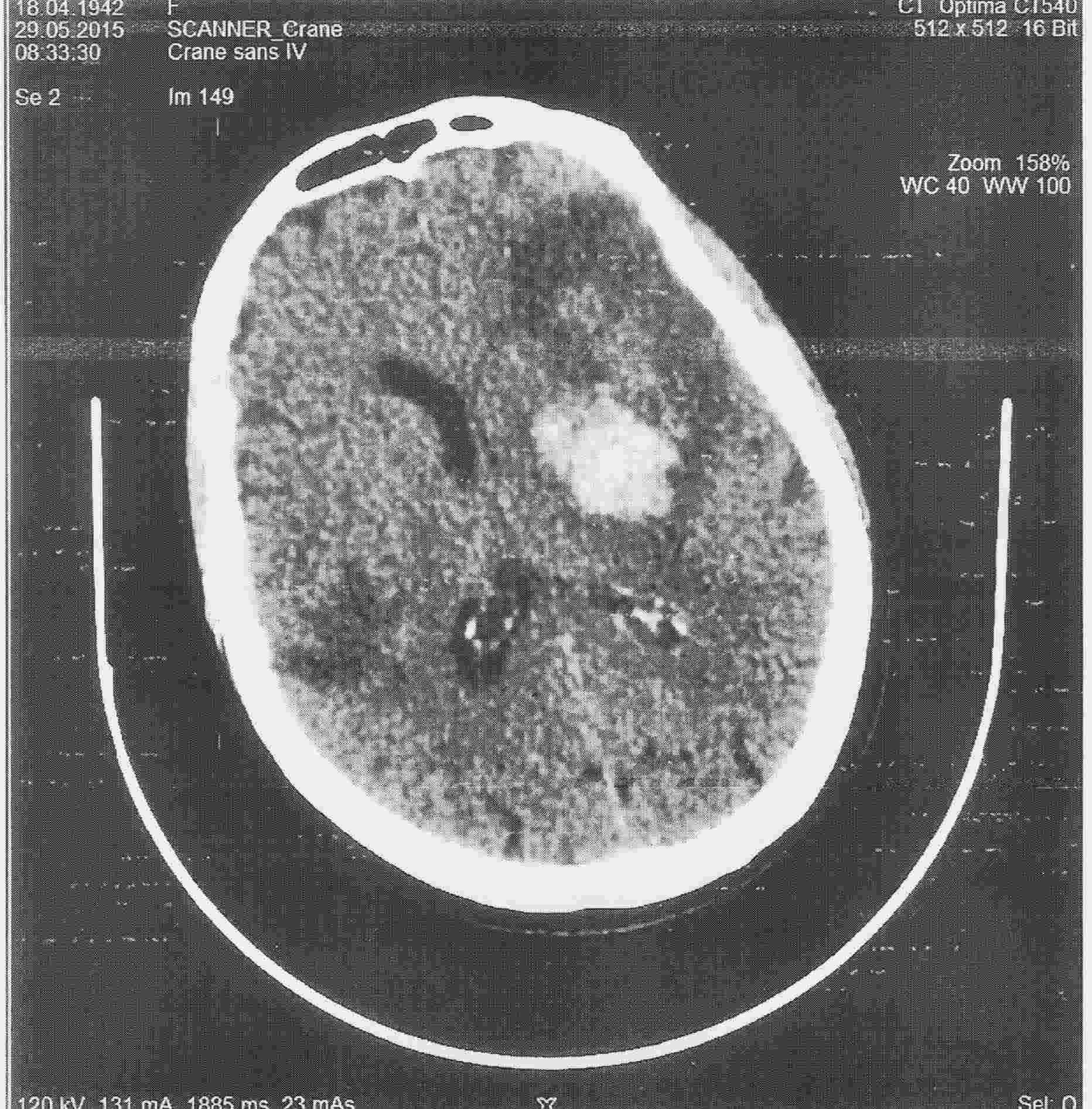 Tomodensitométrie. Deux AVC (zones hypodenses) dont un avec transformation hémorragique (zone arrondie hyperdense). Contre-indication à la thrombolyse.