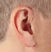 Behind the Ear (BTE)