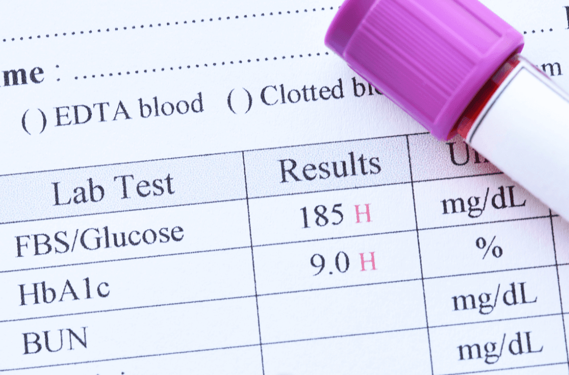 eHR Inttegration and blood tests