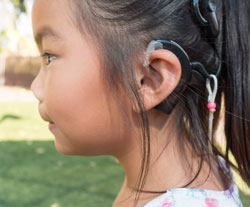 Cochlear Implants for Children