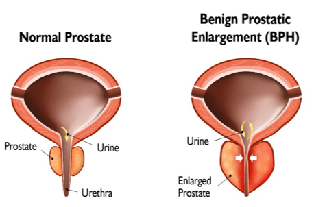 BPH and Your Urinary Health