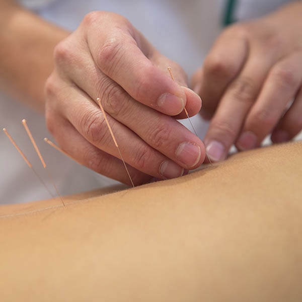 "Hero Image for the ""Influence of Culture on the Perception of Health"" CPD course portraying shows a medical professional performing acupuncture on a patient as an integrative holistic medicine practice"