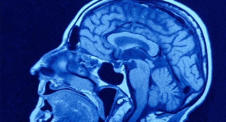 В чем отличие МРТ головного мозга от МРТ сосудов головного мозга?