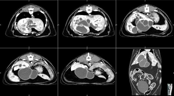 МРТ в комплексной диагностике и выборе лечебной тактики у больных с заболеваниями внепеченочных желчных протоков и поджелудочной железы