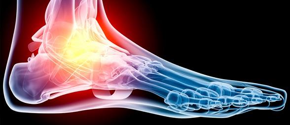 Вывих лодыжки: диагностика и лечение