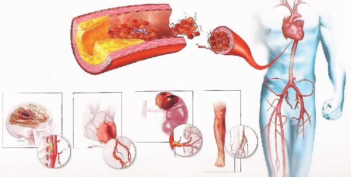 Лечение атеросклероза
