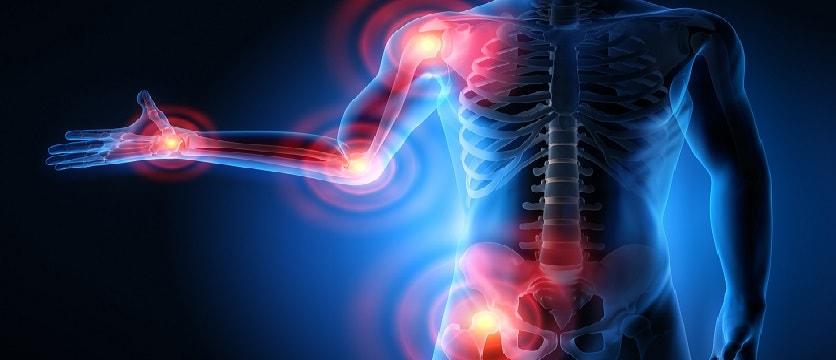 Ранний артрит: сравнительная клинико-лучевая и магнитно-резонансная характеристика суставов