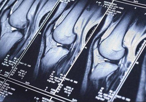 Лучевая диагностика заболеваний и повреждений коленного сустава до и после артроскопии