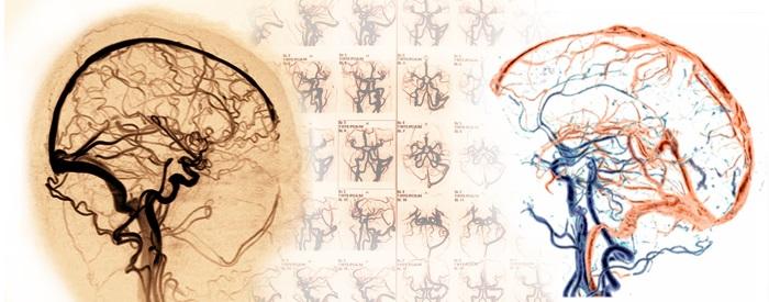 Что такое МРТ сосудов головного мозга?