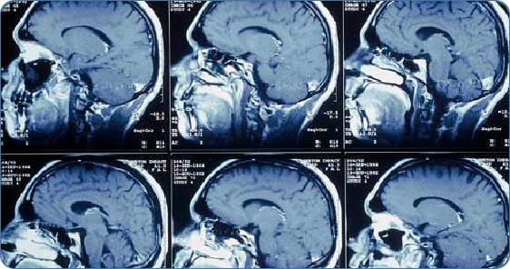 МРТ головного мозга. История