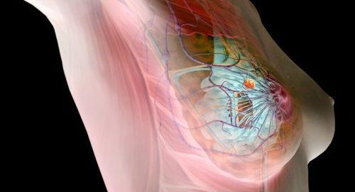 Комбинированные технологии визуализации в маммологии